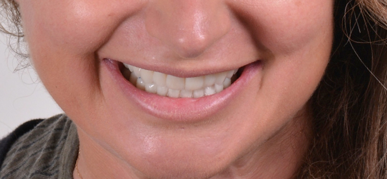 Digital Smile Design Porto Alegre