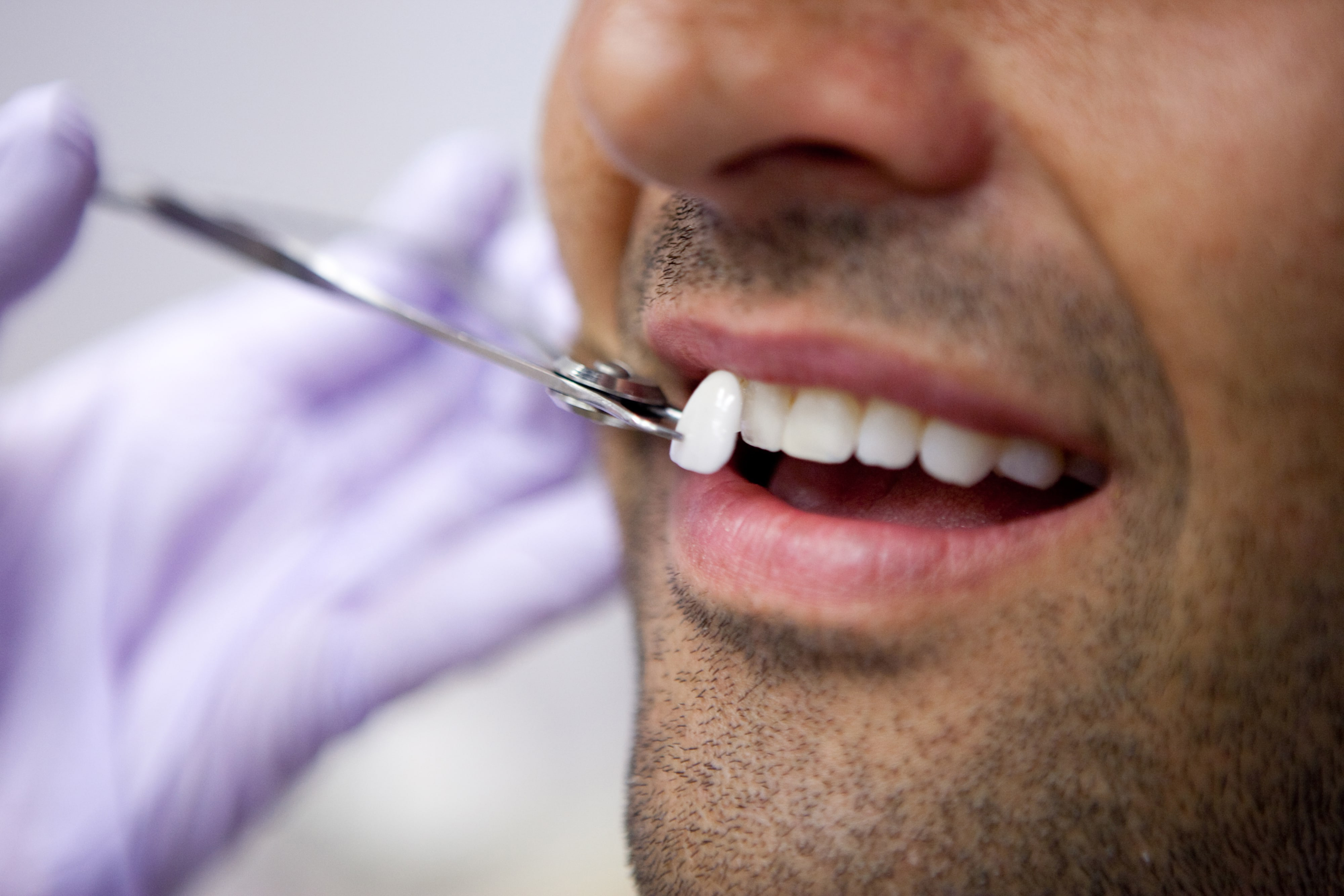 Lentes de Contato Dental em Porto Alegre