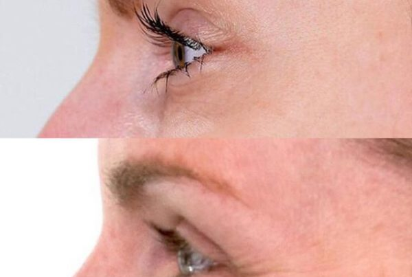 Botox ou Preenchimento Facial